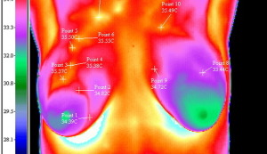 Infrared Imaging / Thermography for Breast Health
